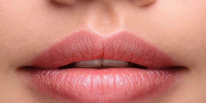 Dudak dolgusu şişliği ne zaman geçer? Doğal şekilde dudak dolgusu nasıl yapılır?