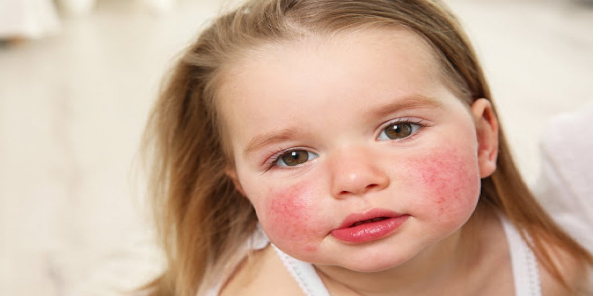 Çocuk alerji belirtileri nelerdir? Çocuklarda alerjik belirtilere dikkat!