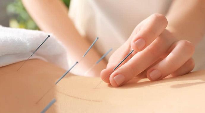 Diyarbakır'da 18 yıllık çocuk hasreti akupunktur tedavisiyle son buldu