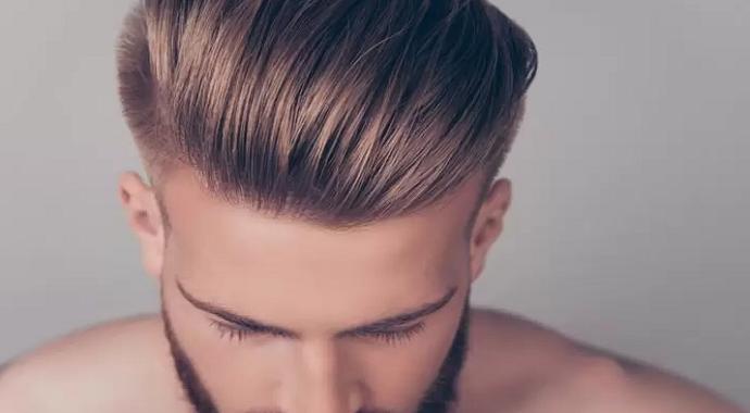 Saç ekiminde dikkat edilmesi gereken 4 madde