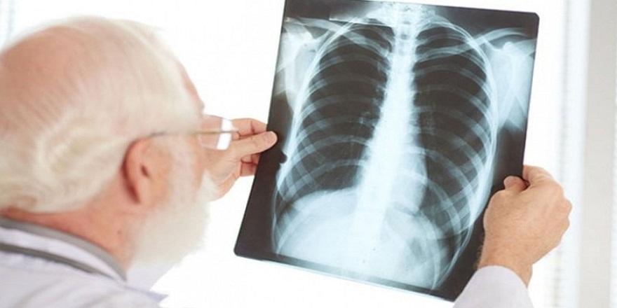 Prof. Dr. Füsun Yıldız:''Toplumda gelişen pnömoniler halen yüksek hastalık ve ölüm nedeni olabiliyor''