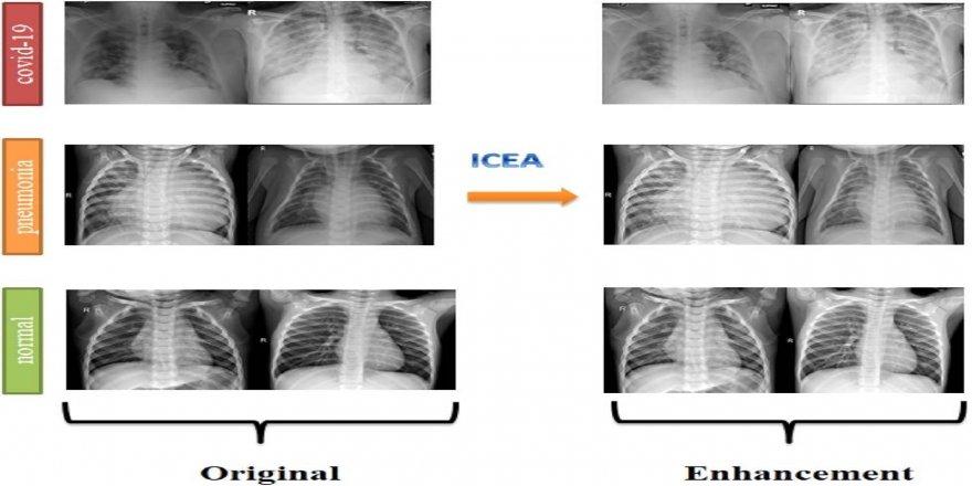 Dr. Öğretim Üyesi Murat Canayaz, röntgen filmlerinden koronayı teşhis eden sistem geliştirdi