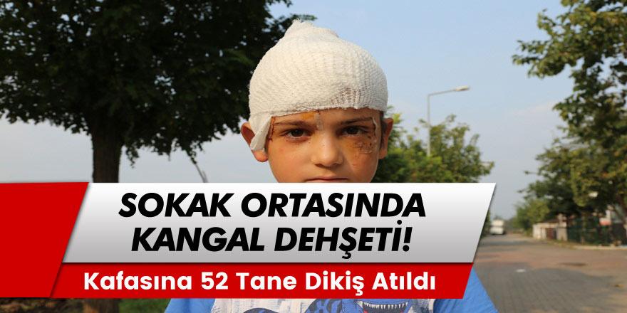 8 yaşındaki Batuhan, sokak ortasında, kangal cinsi köpeğin saldırısı ile ölümden döndü