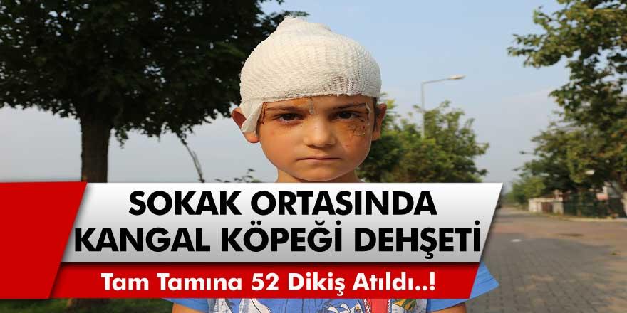 Kocaeli'de 8 Yaşındaki Batuhan, Sokak Ortasında Kangal Köpeğin Saldırısına Uğradı