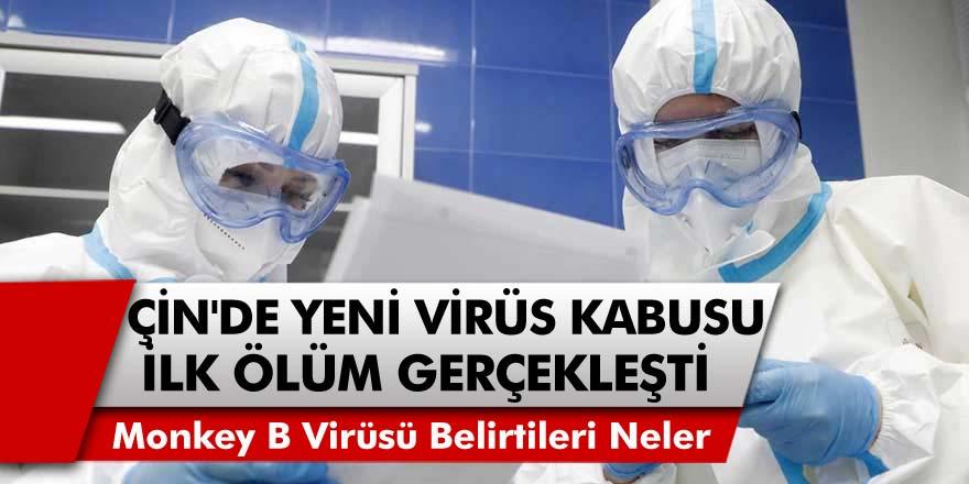 Çin'de 'Monkey B' Virüsü Kabusu! İlk Ölüm Gerçekleşti... Monkey B Virüsü Belirtileri Nelerdir?